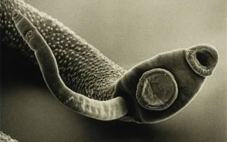 Причины появления паразитов у взрослого