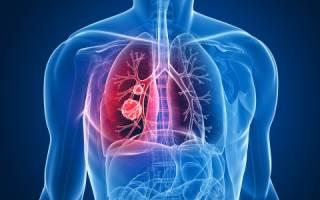 Особенности диеты при бронхиальной астме