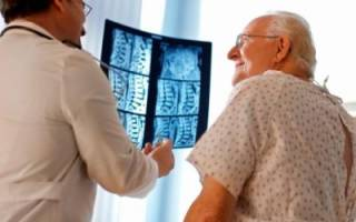 Какие симптомы и формы заболевания имеет спондилоартроз грудного отдела позвоночника?