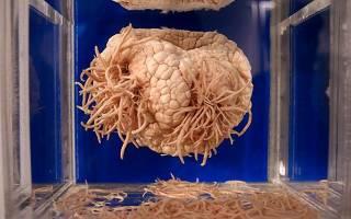 Что делать если у вас паразиты в мозге?