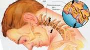 Проводимые мероприятия при лечении нарушения мозгового кровообращения при шейном остеохондрозе