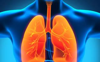 Разновидности, причины и лечение воспаления легких