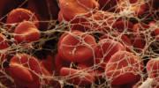 Причины появления и симптомы тромбов в сосудах