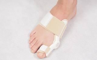 Показания, противопоказания, эффективность применения и виды вальгусных ортопедических шин