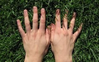 Что делать, если сильно потеют руки?