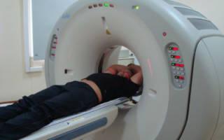 Характерные отличия процедур МРТ и КТ позвоночника и какому методу лучше отдать предпочтение?