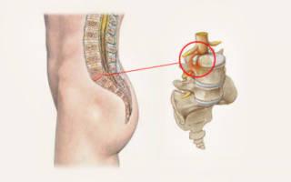 Симптомы и методы лечения протрузии дисков поясничного отдела позвоночника