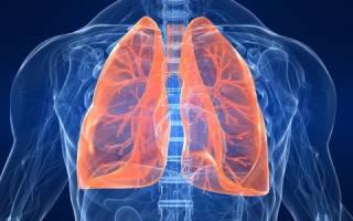 Как протекает пневмония у новорожденных?