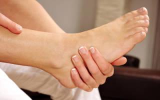 Лечение сильной отечности ног в домашних условиях