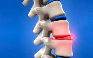 Характеристика заболевания и лечение протрузии дисков поясничного отдела позвоночника
