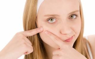 Методы лечения подростковых прыщей у девочек