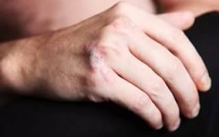 Крем «Король кожи» от псориаза: состав, способ применения, эффективность