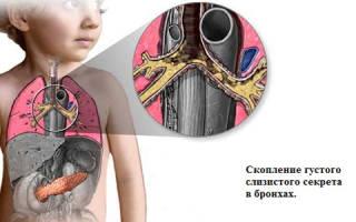 Симптомы и лечение муковисцидоза