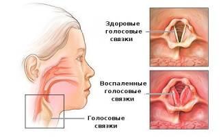 Каковы симптомы и лечение ларингита в домашних условиях?