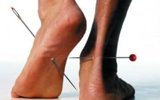 Симптомы и лечение периферической нейропатии нижних конечностей