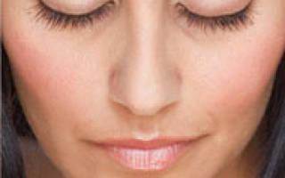 Аллергический дерматит век: лечение медикаментозными средствами