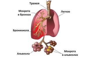 Какие могут быть остаточные явления после пневмонии?