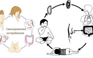 Как обнаружить и вывести остриц из детского организма