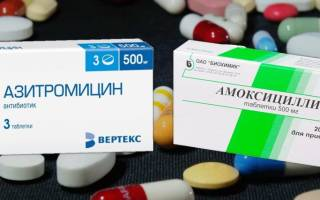 Амоксициллин или Азитромицин: что лучше?