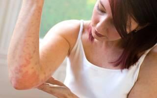 Как вылечить псориаз навсегда: современные методы лечения