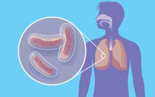 Основные лекарства от туберкулеза легких