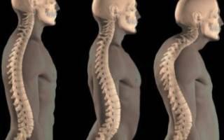 Признаки заболевания и особенности лечения грудного остеохондроза