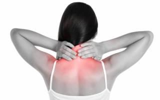 Симптомы и лечение спондилеза шейного отдела позвоночника