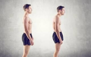 Методы лечения сколиоза шейного отдела позвоночника