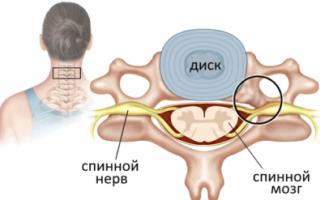 Симптомы заболевания и методы лечения стеноза позвоночного канала шейного отдела
