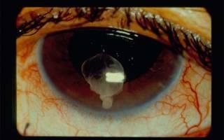 Чем опасен цистицеркоз глаз?