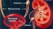 Какие лекарства назначают при мочекаменной болезни почек