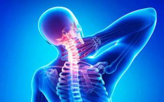 Обзор лекарственных мазей от остеохондроза шейного отдела позвоночника