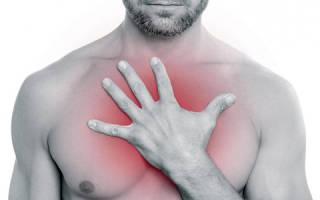 Первая и неотложная медицинская помощь при пневмотораксе
