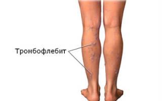 Симптомы и лечение тромбофлебита нижних конечностей