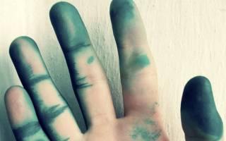 Эффективные способы отмыть зеленку с кожи