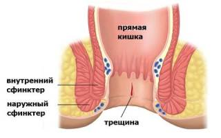 Анальная трещина: причины возникновения и показания к операции