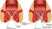 Геморроидальные узлы при геморрое и методы их лечения