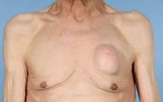 Причины роста шишки (шарика) на грудной клетке или ребре