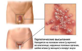 Лечение генитального герпеса различными народными средствами