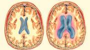 Первые симптомы, возможные последствия, лечение гидроцефалии головного мозга у детей