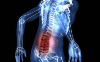 Основные причины и лечения появления боли в спине в области поясницы у женщин