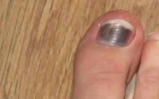 Как вылечить синяк под ногтем большого пальца ноги?