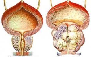 Симптомы аденомы предстательной железы