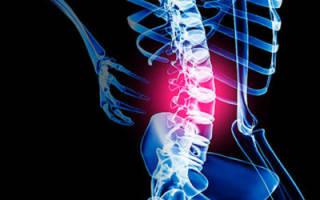 Что включает в себя физиотерапия при остеохондрозе шейного отдела?