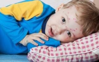 Что делать если появилась сыпь при скарлатине у детей?