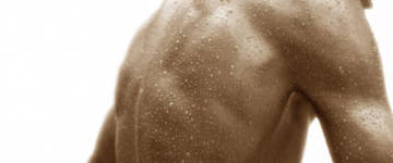 Сильно потеет спина: причины и что делать?