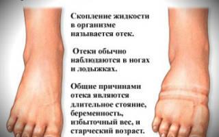 Почему могут отекать ноги у мужчин