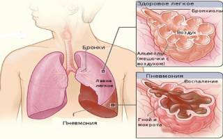 Пневмония: симптоматика и сроки лечения