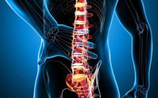 Харктеристика заболевания и лечение гемангиомы позвоночника