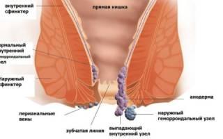 Причины и симптомы развития хронического геморроя